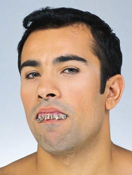 Braces Zähne